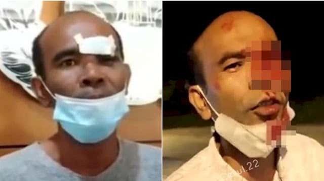 Sandiwara Eks Anggota DPRD yang Matanya Ditusuk Petugas PPKM, Ternyata Pelipisnya yang Kena