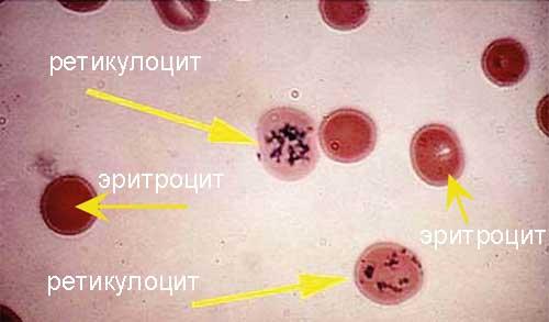 Анализ крови ретикулоциты