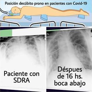 Mantener al paciente boca abajo puede prevenir el 50% de las muertes por Covid-19