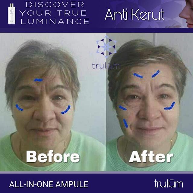 Jual Serum Penghilang Jerawat Trulum Skincare Sumelap
