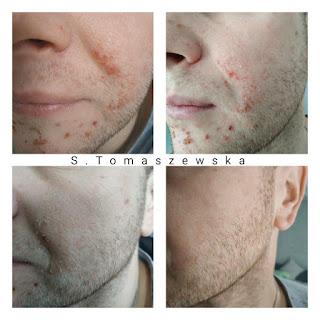 Bursztynowa rewitalizacja skóry