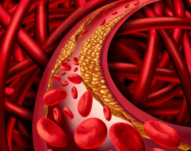 Gordura no sangue: conheça e saiba as diferenças dessas doenças