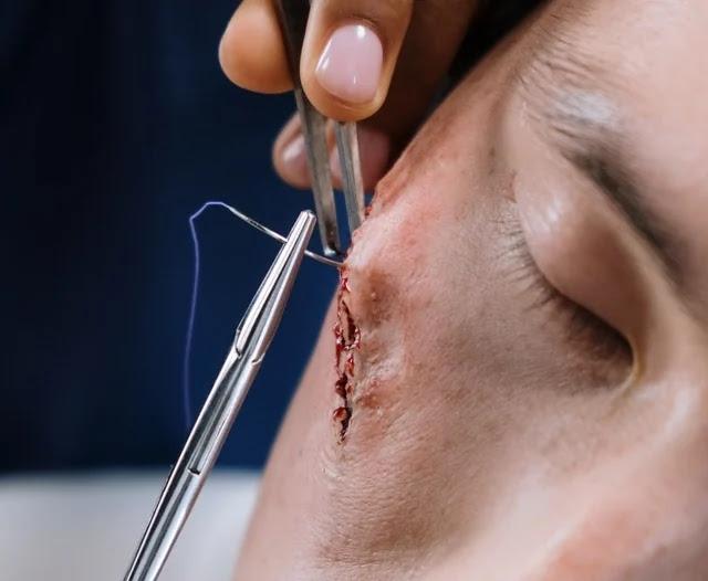 aprende ingles medicina cerrar herida cara puntos cicatriz corte tajo