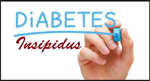 Cara Mengobati Penyakit Diabetes Insipidus