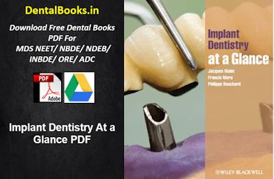 Implant Dentistry At a Glance PDF