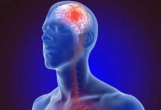 สัญญาณเตือนและปัจจัยเสี่ยงต่อโรคหลอดเลือดสมองตีบที่ควรทราบ
