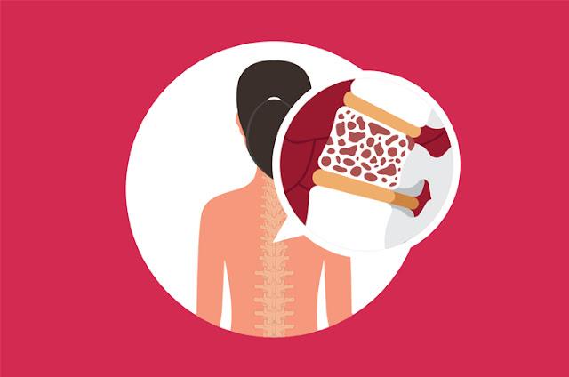 Agar terhindar dari osteoporosis dianjurkan untuk mengkonsumsi makanan dan minuman yang banyak mengandung kalsium dan diimbangi dengan olahraga yang teratur.