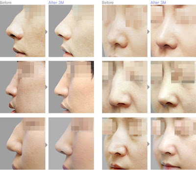 Wonjin Plastic Surgery Korea's Solution For Hooked Nose