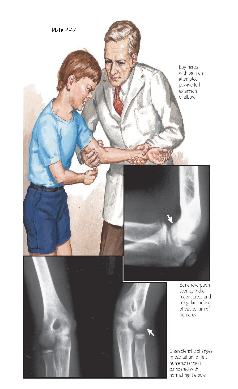 ROSIS OF THE ELBOW (PANNER DISEASE)