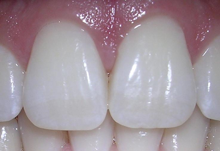 Teeth Whitening Home Remedies/ब्रश करते समय Toothpaste के साथ मिला लो ये 1 चीज़, दाँत हो जाएंगे दूध जैसे सफेद
