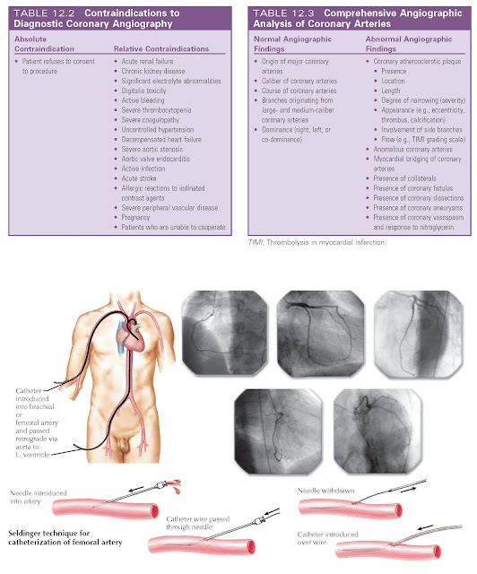 Left-sided heart catheterization.