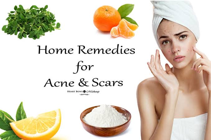 Pimple removal home remedies
