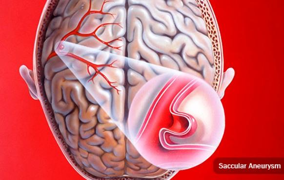 Saccular Brain Aneurysm
