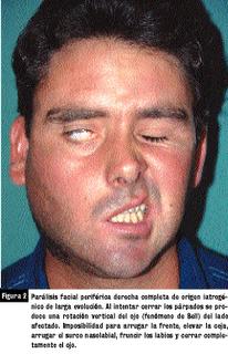 Un Derrame Facial 4