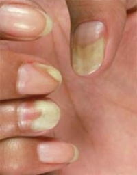 beauty worth cosmetic yellow nails sign of illness