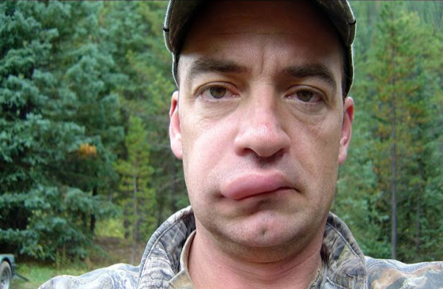 Έφαγαν τσίμπημα μέλισσας στο πρόσωπο: Δείτε πως έγιναν μετά από λίγη ώρα...