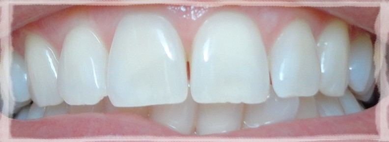 Blog Vanessa Sial Resultado Desafio Oral B 3d Whitestrips