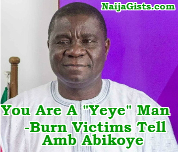nigerian ambassador to ghana ignore burn victim