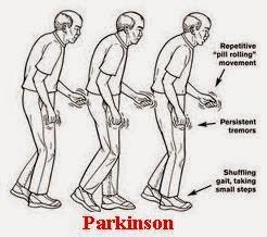Obat Parkinson Tradisional