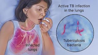 PENGOBATAN TBC OBAT PARU PARU BASAH DAN KERING