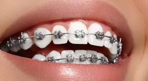 What can you easily eat with fixed braces?
