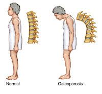 Penyebab osteoporosis