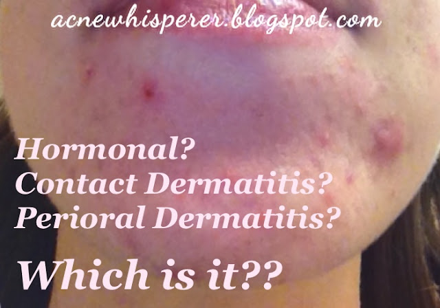 Chin breakouts ?  Could be hormones, contact dermatitis, or peri-oral dermatitis.