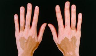 http://skincareayurveda.com/vitiligo-specialist-india/