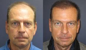 saç ekimi öncesi ve sonrası foto 13