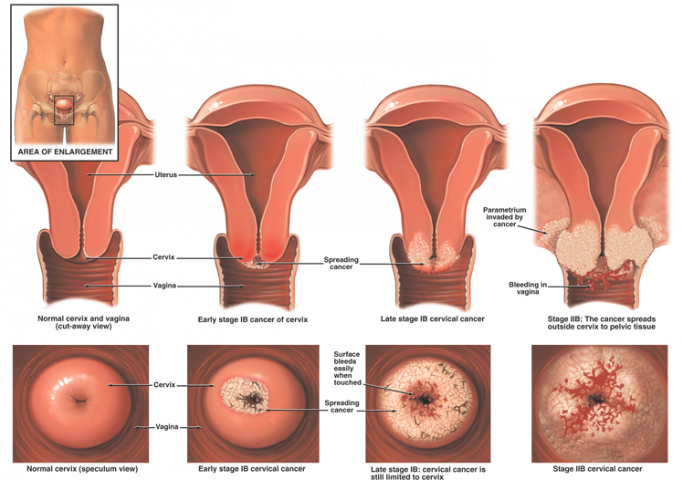 How to know symptoms of cervical cancer | How to keep Our live