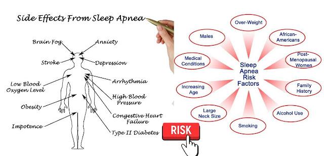 dentofacial growth and sleep apnea