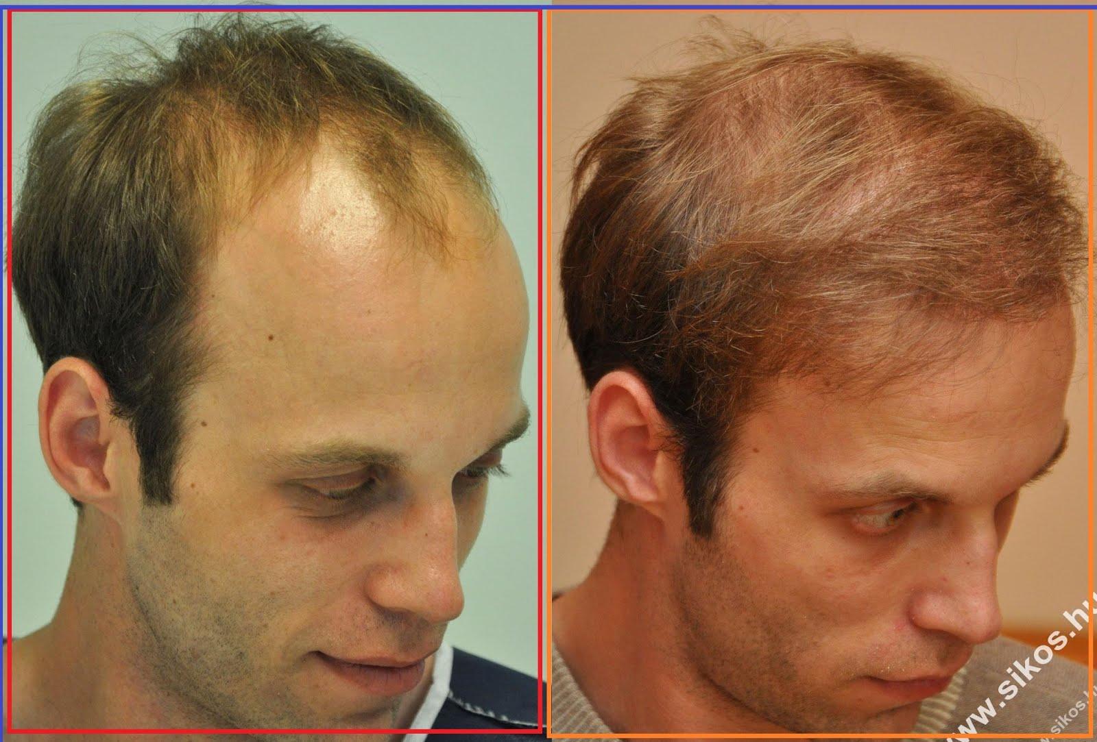 Haartransplantation Kosten und Informationen