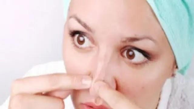تنظيف الوجه من النقط السوداء