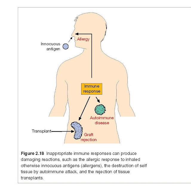 Inappropriate immune responses can produce damaging reactions, such as the allergic response to inhaled otherwise innocuous antigens (allergens), the destruction of self tissue by autoimmune attack, and the rejection of tissue transplants.