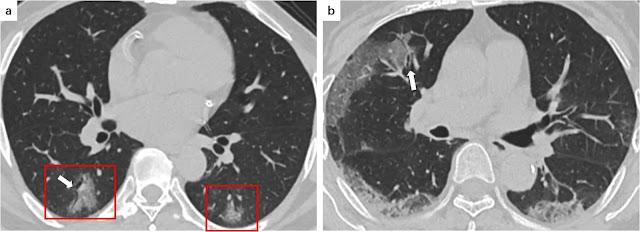 Gambar 3 : a. Seorang pasien COVID-19 laki-laki berusia 48 tahun mengalami demam selama 5 hari. CT scan menunjukkan GGO bilateral di lobus bawah (bingkai merah) dan bronkogram udara (panah putih) di daerah subpleural kiri. b. Seorang pasien COVID-19 laki-laki 66 tahun yang mengalami demam disertai batuk selama 7 hari. CT scan menunjukkan pola retikuler di daerah subpleural lobus bawah bilateral, GGO, dan penebalan dinding bronkial (panah putih) di lobus kanan tengah