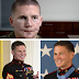 Medal Of Honor recipient Kyle Carpenter before and after facial reconstruction surgery. (Picture)