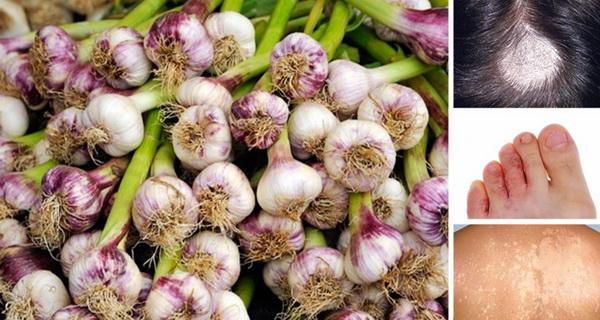 usturoiul este un remediu puternic mai atunci cand este consumat pe stomacul gol