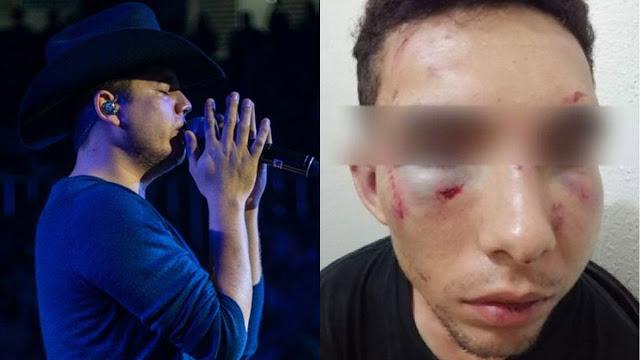 Ya no tiene salida emiten la orden de captura a Remmy Valenzuela y dicen orden a su esposa a pedir que primo y su novia le brinden el perdón