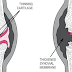 Rheumatoid arthritis (RA)   causes, symptoms and management