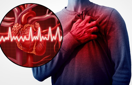 Com a Covid-19 dispara o registro de arritmias cardíacas