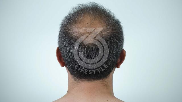 4 myths about hair loss