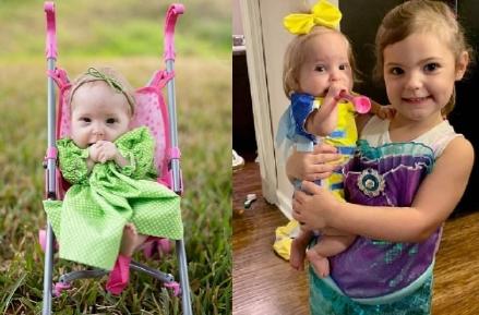 Благодаря редкому заболеванию, девочка останется куклой на всю жизнь