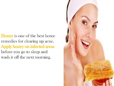 How To Get Rid Of Old Acne Scars at Home with honey