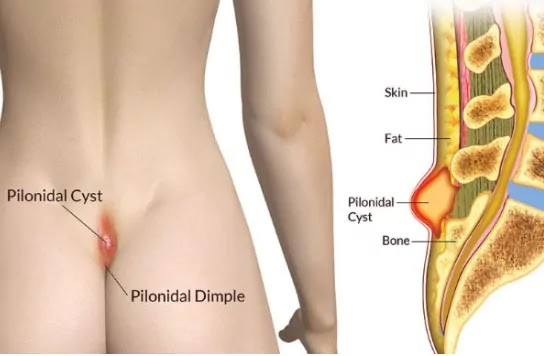 Pilonidal cyst causes, Symptoms and Treatment