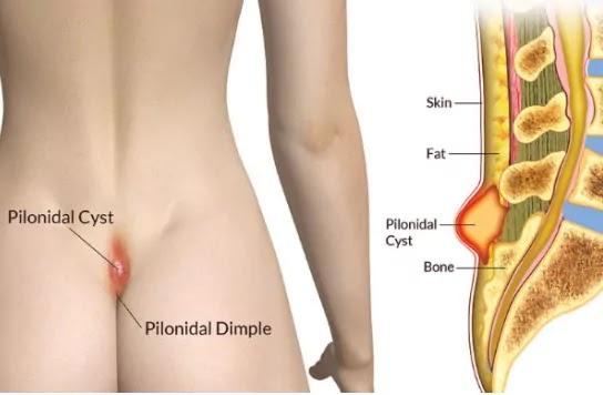 Pilonidal cyst Causes