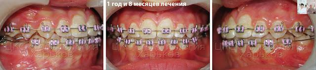 Ранее ортодонтическое лечение, момент смены пятых зубов