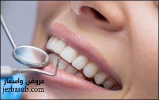 تجربتي مع عدسات الاسنان اللومينير