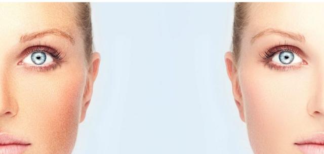 Cara Perawatan bintik-bintik hitam pada wajah dengan 5 langkah