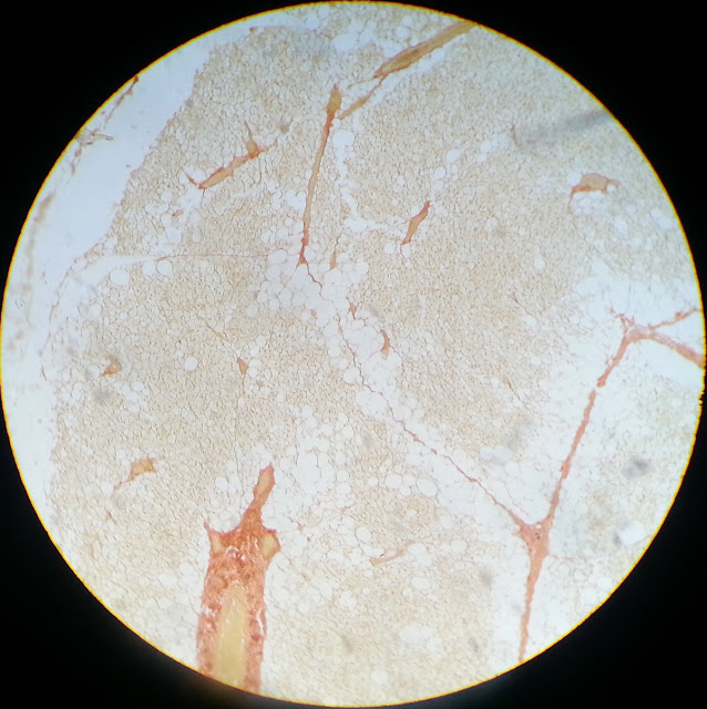 histology slide of brown adipose tissue