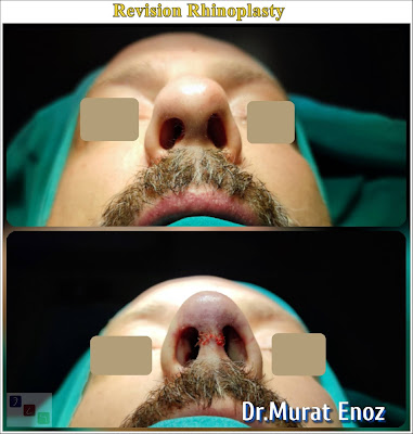 Cost Of Revision Rhinoplasty In Turkey,Cost Of Revision Rhinoplasty In Istanbul,